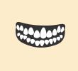 歯がデコボコ(叢生)