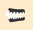 出っ歯が気になっています(上顎前突)